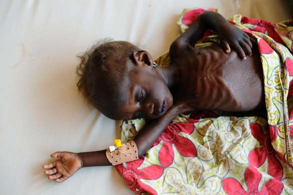 Rahila, two, asleep while being treated for severe acute malnutrition